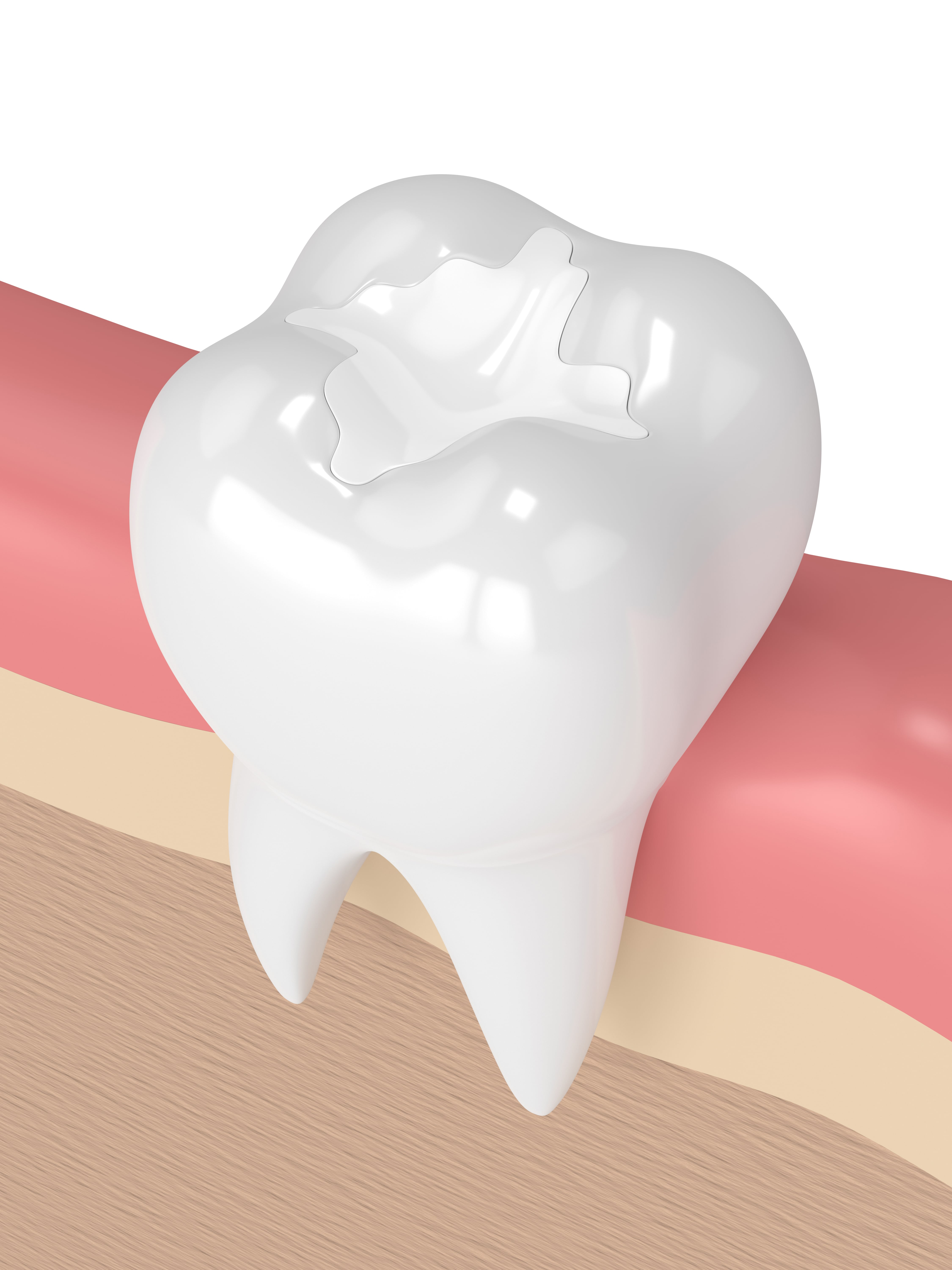 3-D image of a composite filling in a tooth