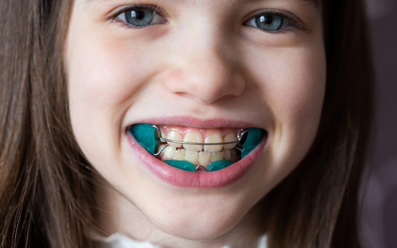 Child With Orthodontics
