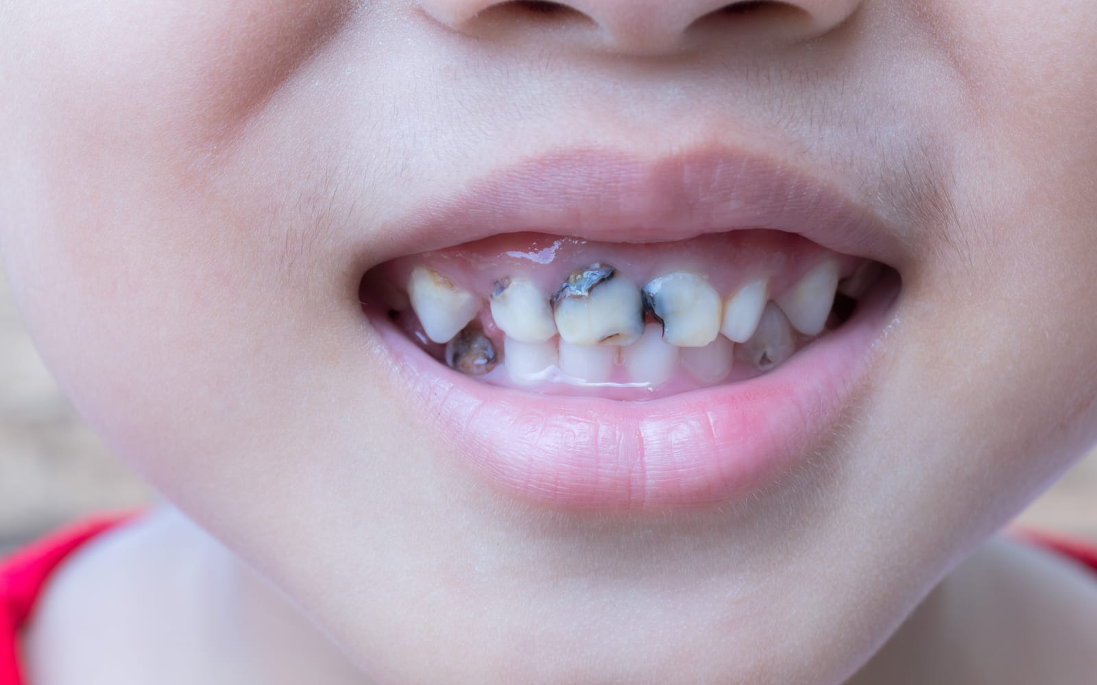 Child with decaying teeth